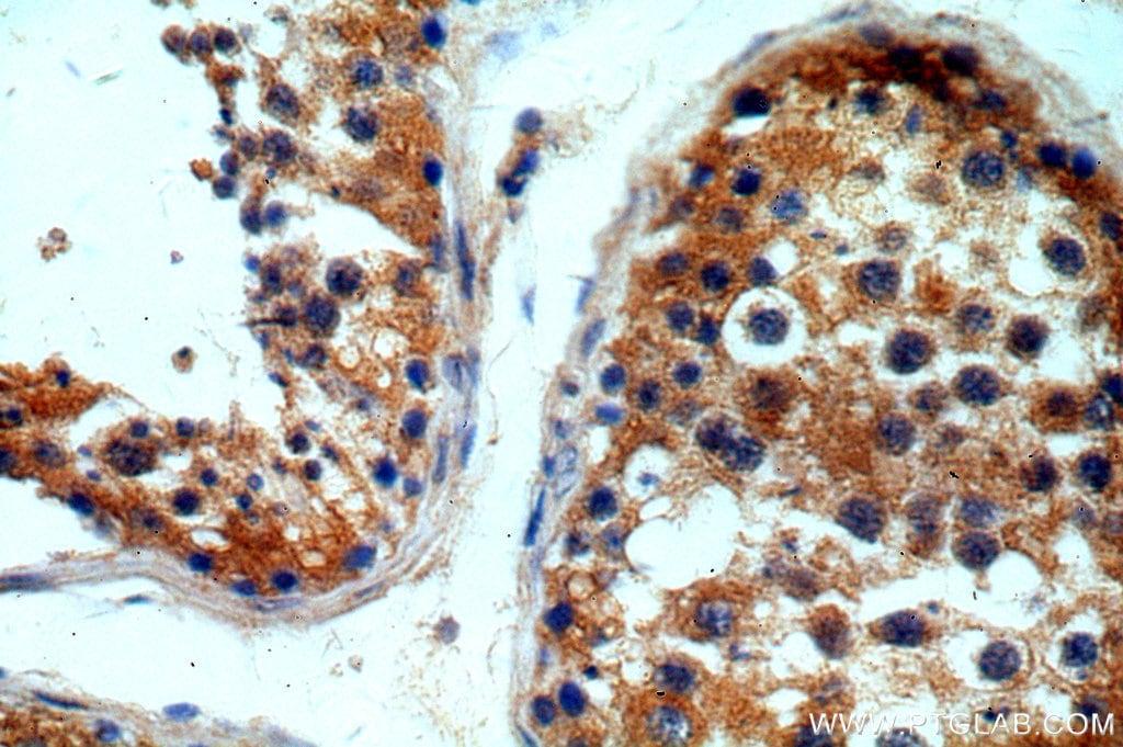 ITPR1 Antibody in Immunohistochemistry (Paraffin) (IHC (P))