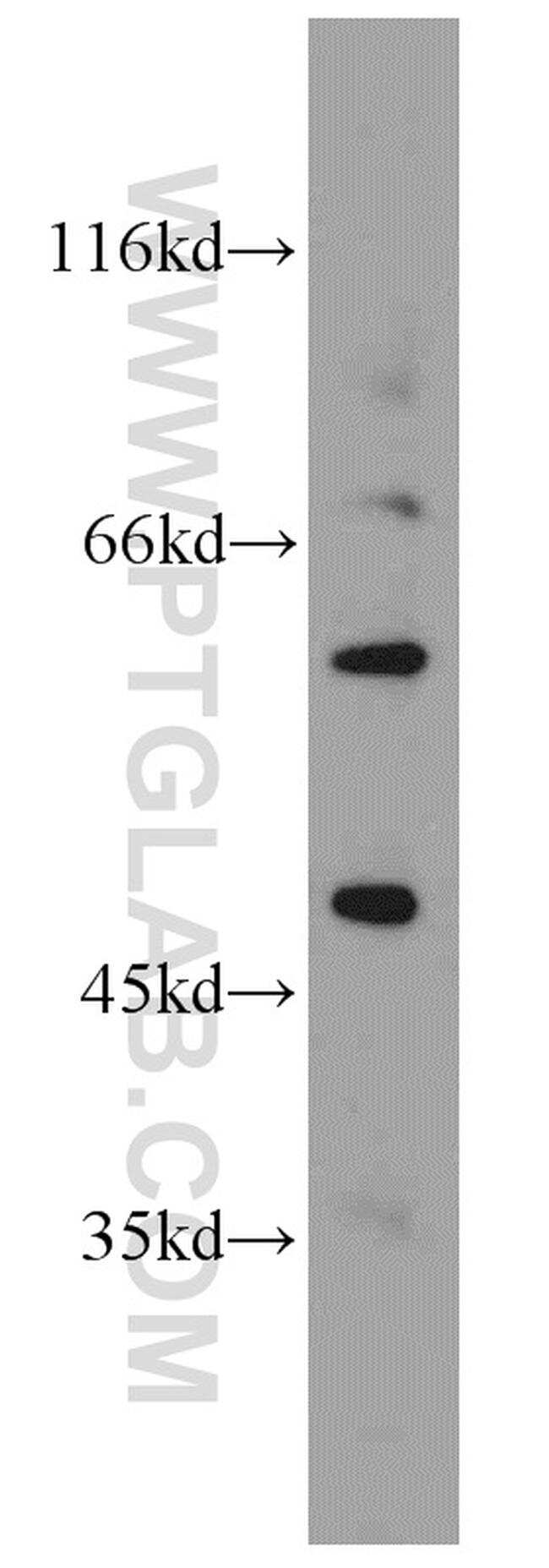 Kir2.1 Antibody in Western Blot (WB)