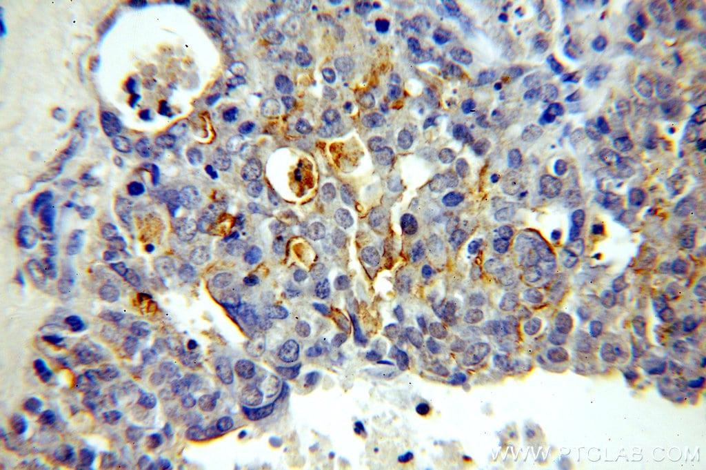 MUC1/CA15-3 Antibody in Immunohistochemistry (Paraffin) (IHC (P))