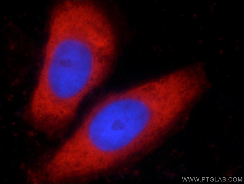 LDHA Antibody in Immunofluorescence (IF)