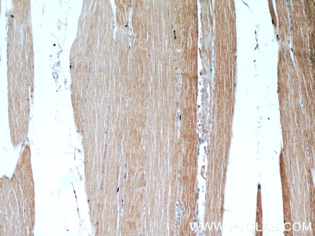 LDHA Antibody in Immunohistochemistry (Paraffin) (IHC (P))