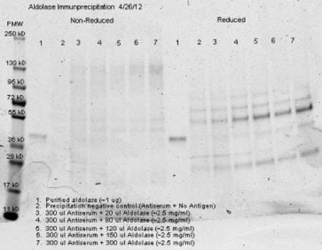 Aldolase Antibody in Immunoprecipitation (IP)