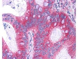 NFkB p65 Antibody in Immunohistochemistry (IHC)