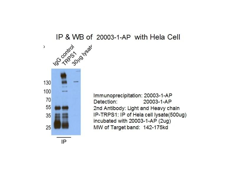 TRPS1 Antibody in Immunoprecipitation (IP)