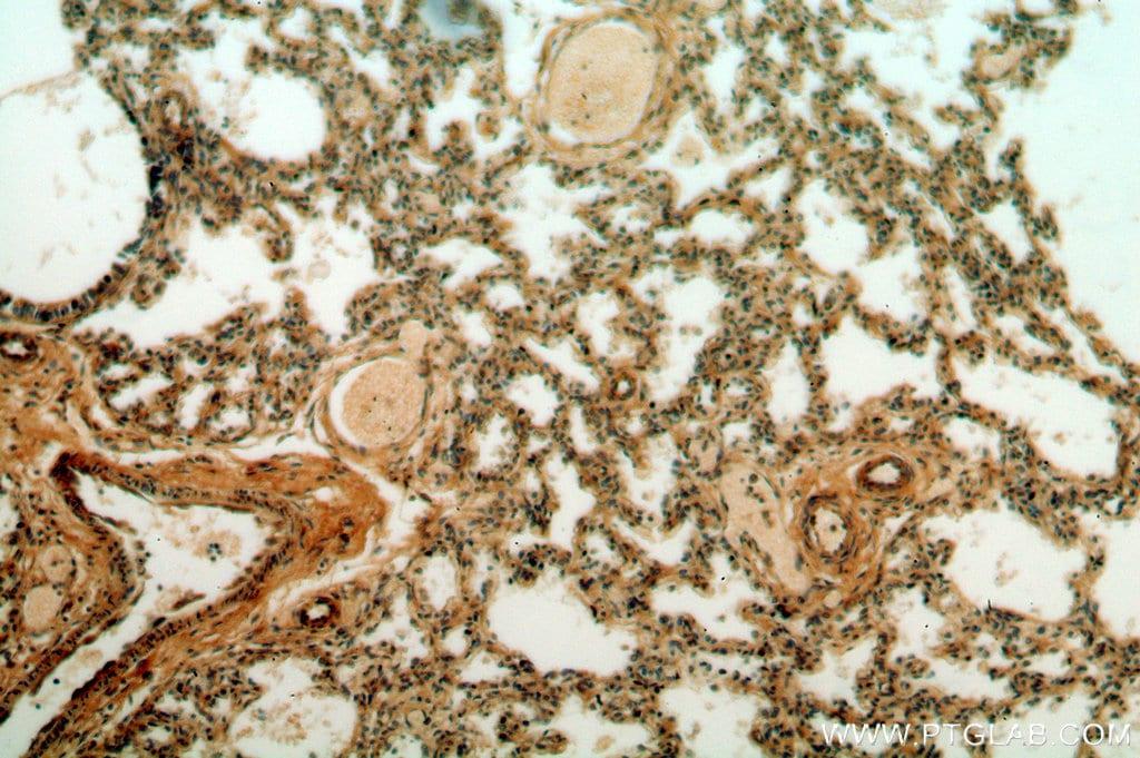 CPNE8 Antibody in Immunohistochemistry (Paraffin) (IHC (P))