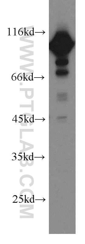 EEF2 Antibody in Western Blot (WB)