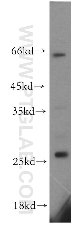 KCTD15 Antibody in Western Blot (WB)