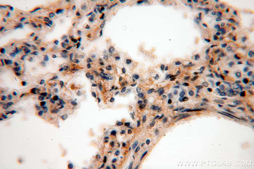 ACAP1 Antibody in Immunohistochemistry (Paraffin) (IHC (P))