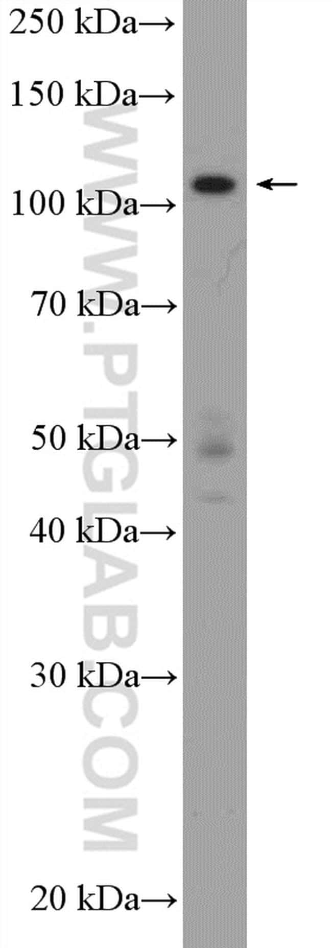 HNRNPUL2 Antibody in Western Blot (WB)