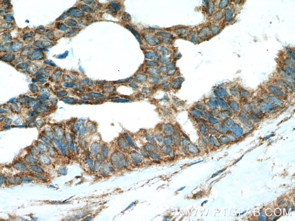 SHP2 Antibody in Immunohistochemistry (Paraffin) (IHC (P))