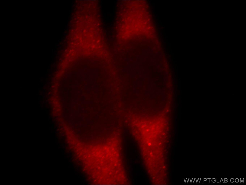 B4GALT6 Antibody in Immunofluorescence (IF)