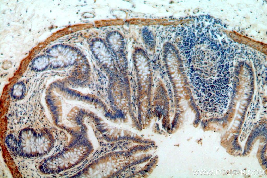 B4GALT6 Antibody in Immunohistochemistry (Paraffin) (IHC (P))