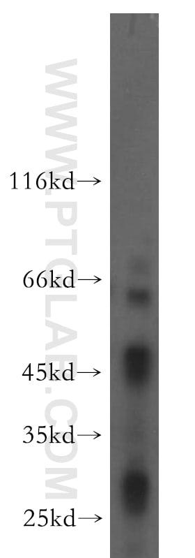 B4GALT6 Antibody in Western Blot (WB)