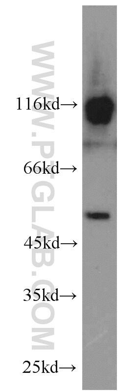 SMCR7L/MID51 Antibody in Western Blot (WB)