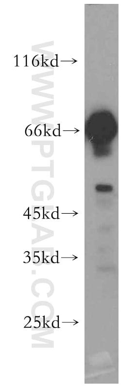 KGA Antibody in Western Blot (WB)