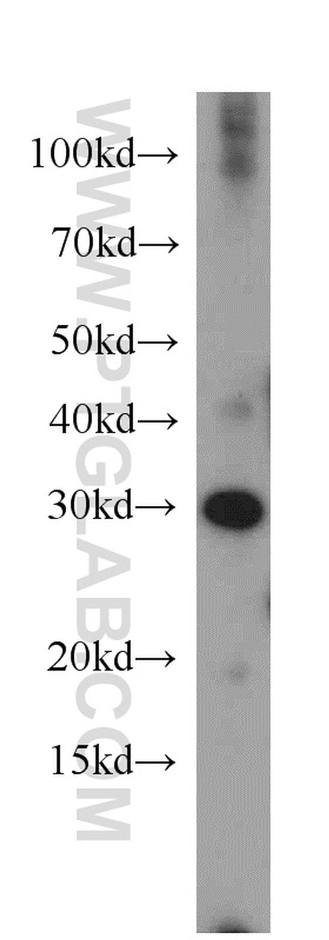 MRTO4 Antibody in Western Blot (WB)
