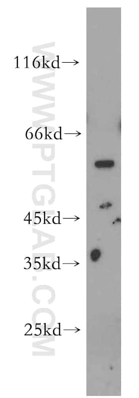 STEAP2 Antibody in Western Blot (WB)