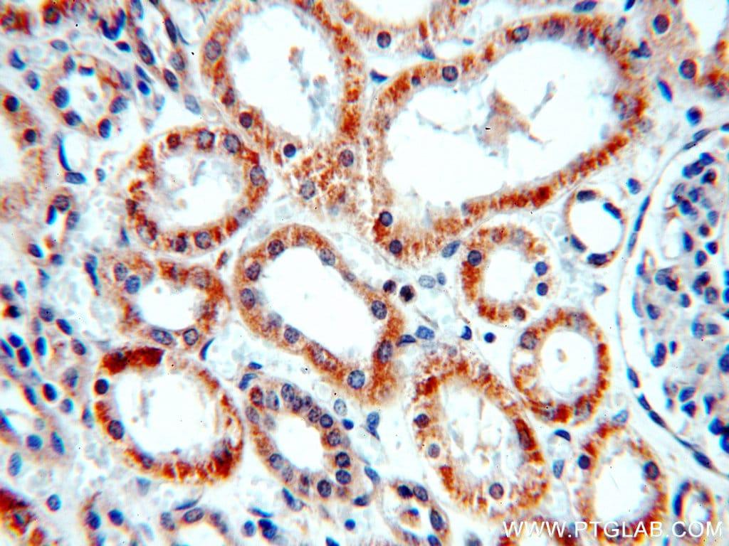 NARFL Antibody in Immunohistochemistry (Paraffin) (IHC (P))