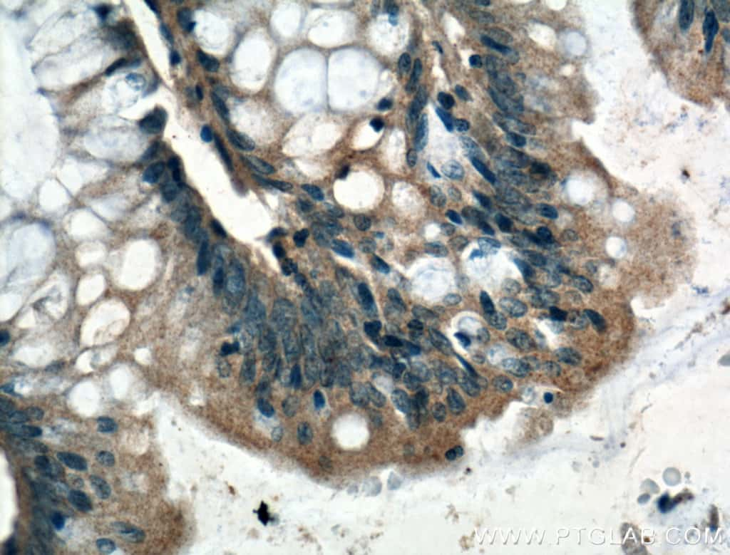 ARF6 Antibody in Immunohistochemistry (Paraffin) (IHC (P))