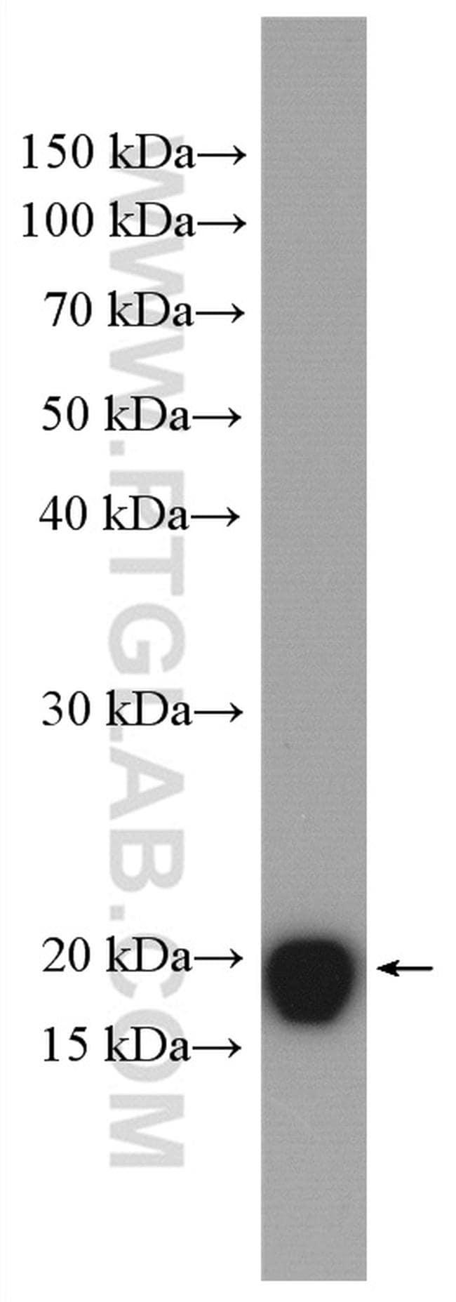 ARF6 Antibody in Western Blot (WB)
