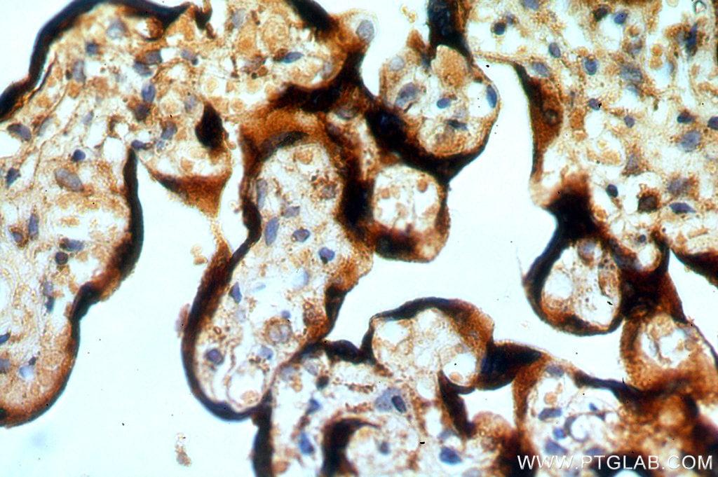 RAB5A Antibody in Immunohistochemistry (Paraffin) (IHC (P))