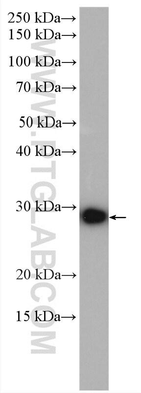 CSNK2B Antibody in Western Blot (WB)