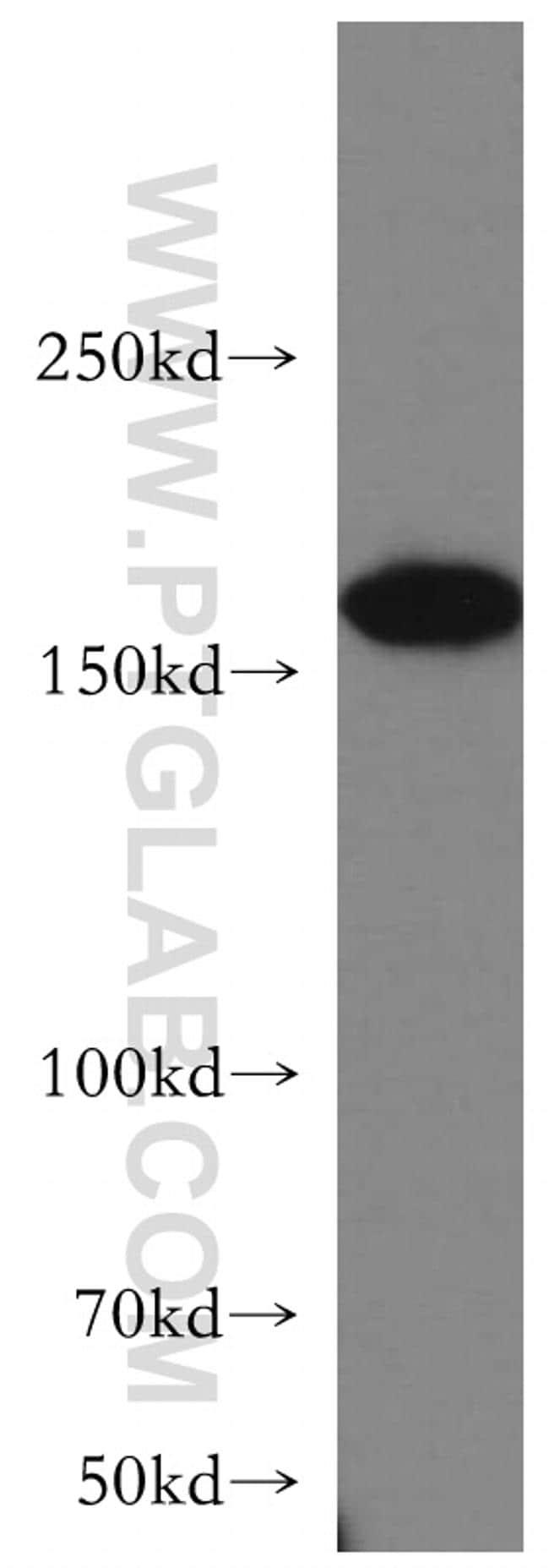 ROCK2(C-term) Antibody in Western Blot (WB)