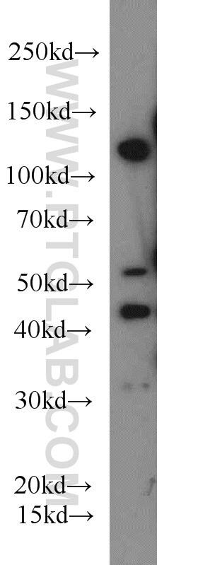 IGF1R beta chain Antibody in Western Blot (WB)