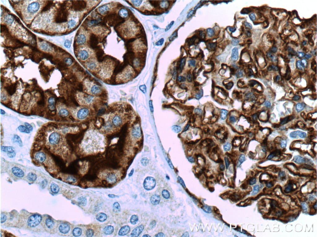 AQP1 Antibody in Immunohistochemistry (Paraffin) (IHC (P))