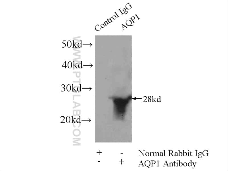 AQP1 Antibody in Immunoprecipitation (IP)