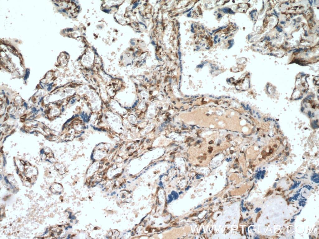 YBX1 Antibody in Immunohistochemistry (Paraffin) (IHC (P))