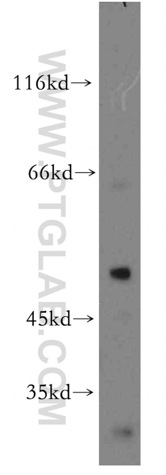 YBX1 Antibody in Western Blot (WB)
