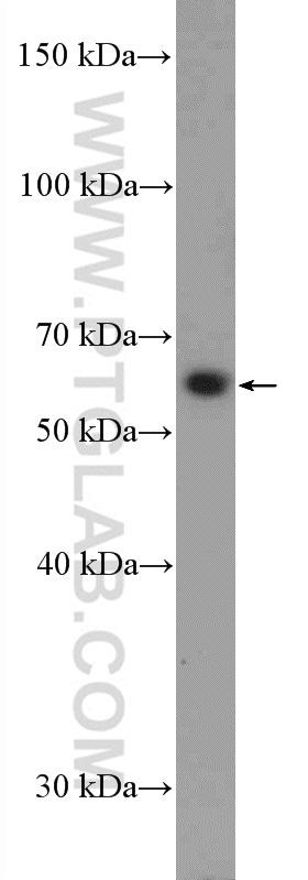 SLC18A1 Antibody in Western Blot (WB)