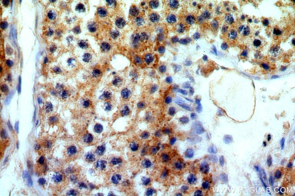 ATG4C Antibody in Immunohistochemistry (Paraffin) (IHC (P))
