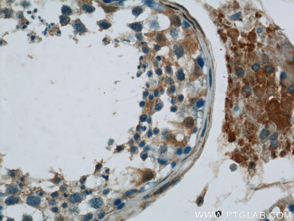 MIF Antibody in Immunohistochemistry (Paraffin) (IHC (P))