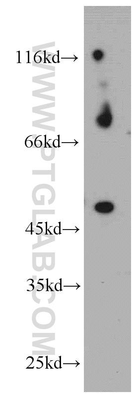 PIGM Antibody in Western Blot (WB)