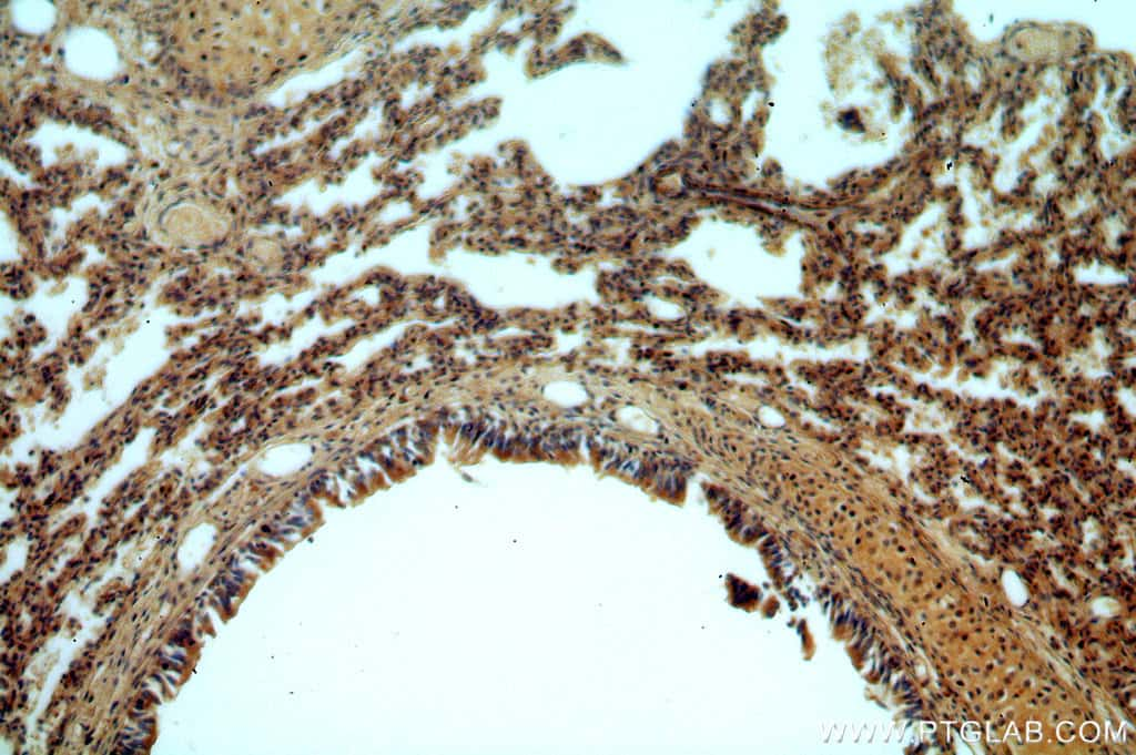 B3GNT5 Antibody in Immunohistochemistry (Paraffin) (IHC (P))