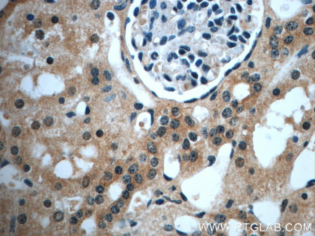 USP33 Antibody in Immunohistochemistry (Paraffin) (IHC (P))