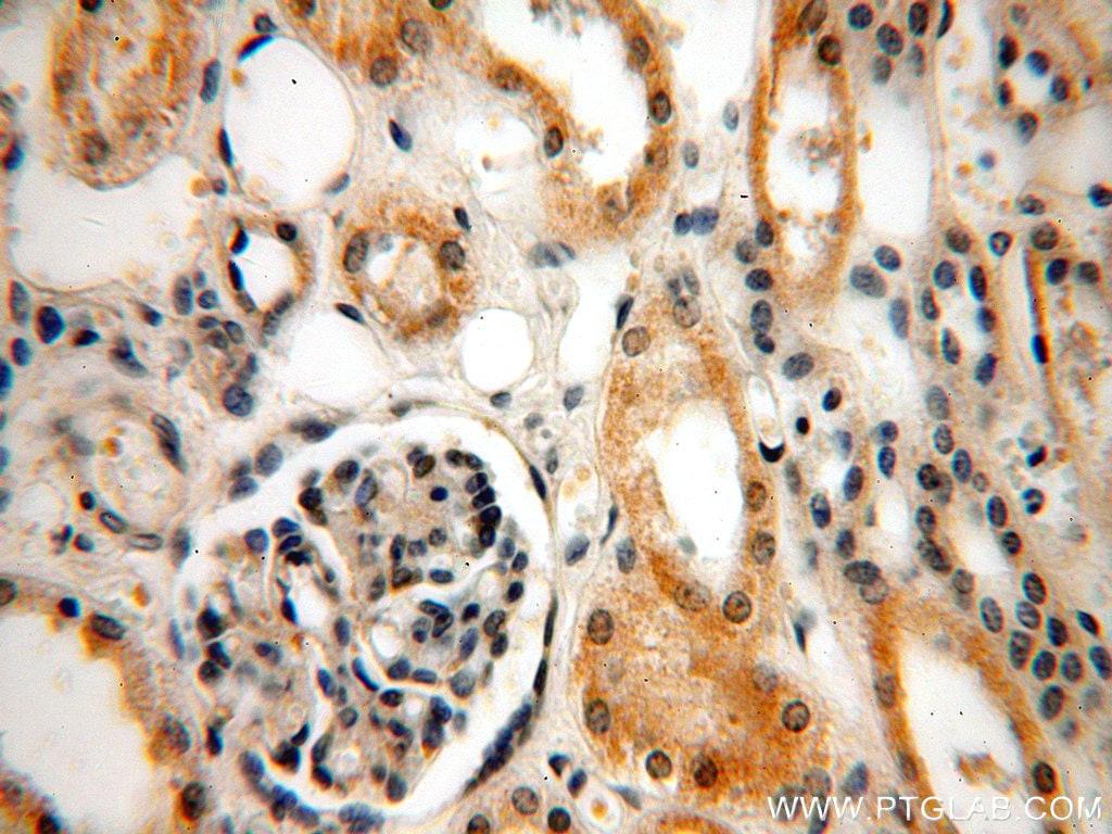 INF2 Antibody in Immunohistochemistry (Paraffin) (IHC (P))