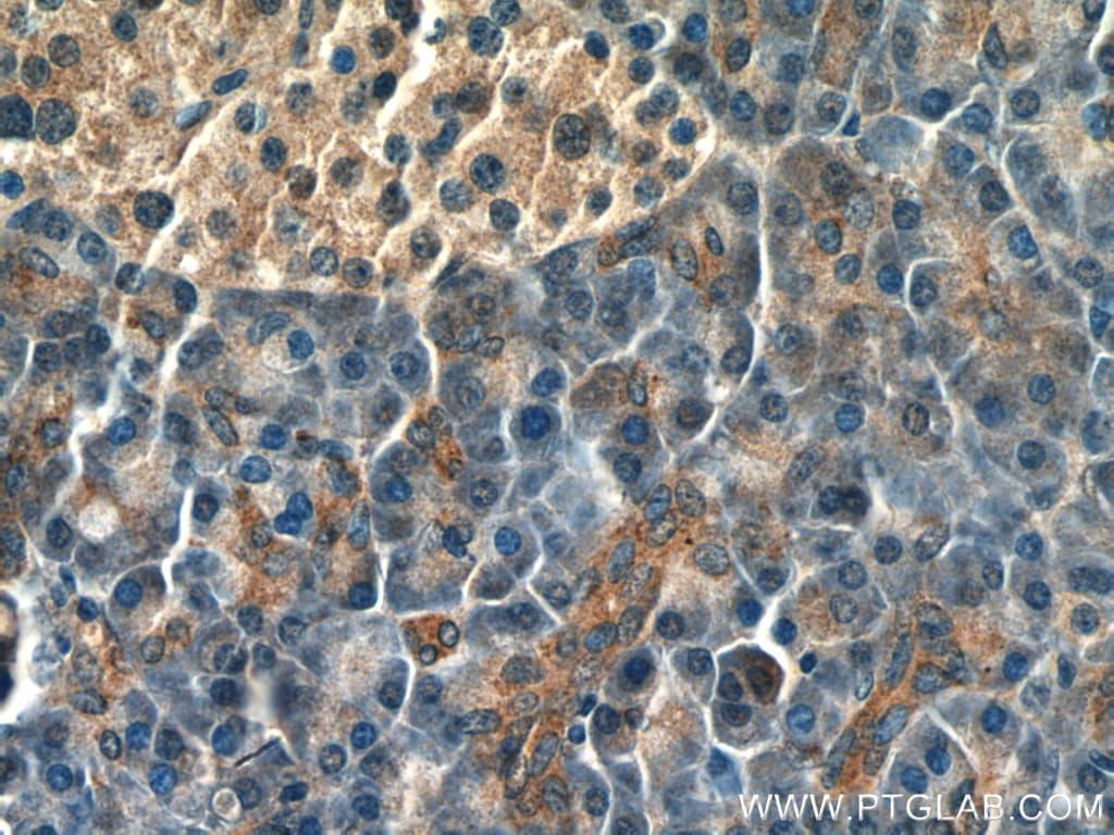 SLC11A2 Antibody in Immunohistochemistry (Paraffin) (IHC (P))