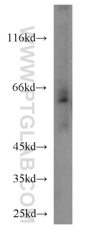 SLC11A2 Antibody in Western Blot (WB)
