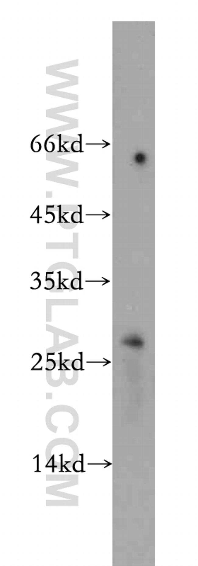 BTG4 Antibody in Western Blot (WB)
