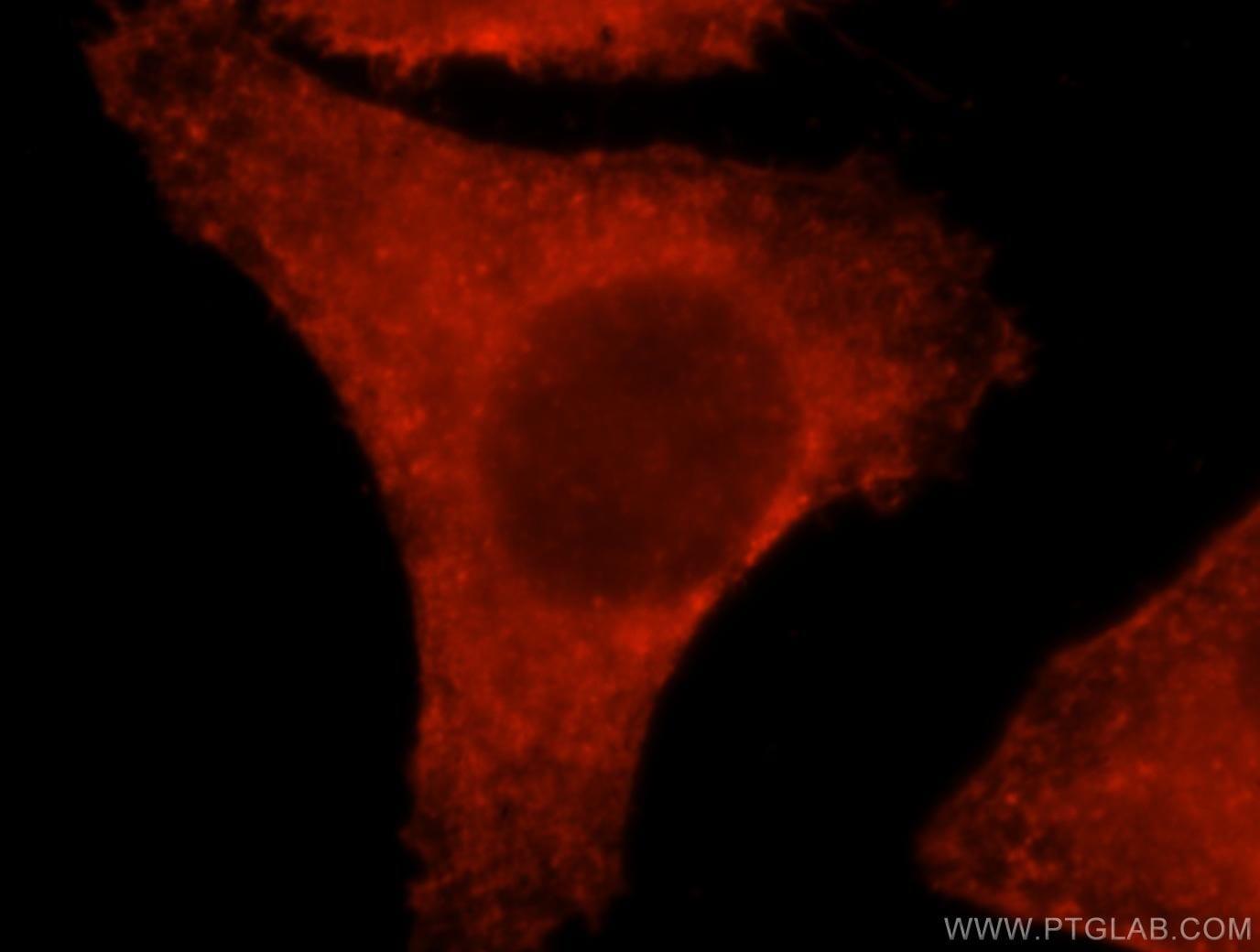 beta Actin Antibody in Immunofluorescence (IF)