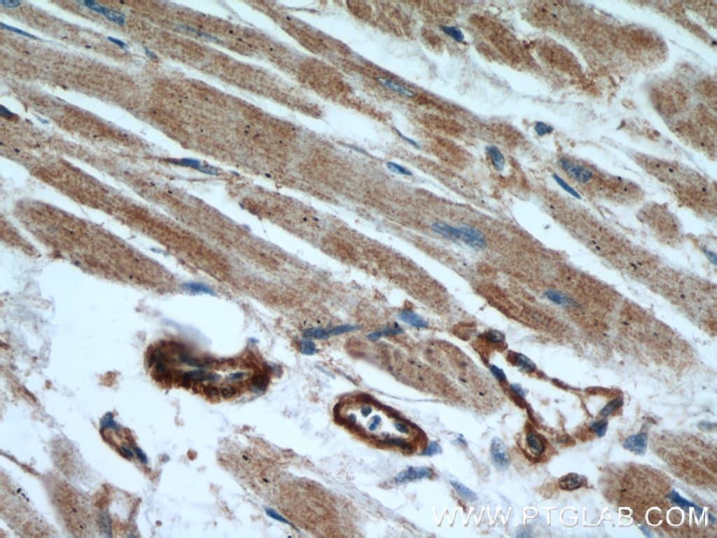 beta Actin Antibody in Immunohistochemistry (Paraffin) (IHC (P))