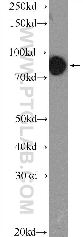 KANK1 Antibody in Western Blot (WB)
