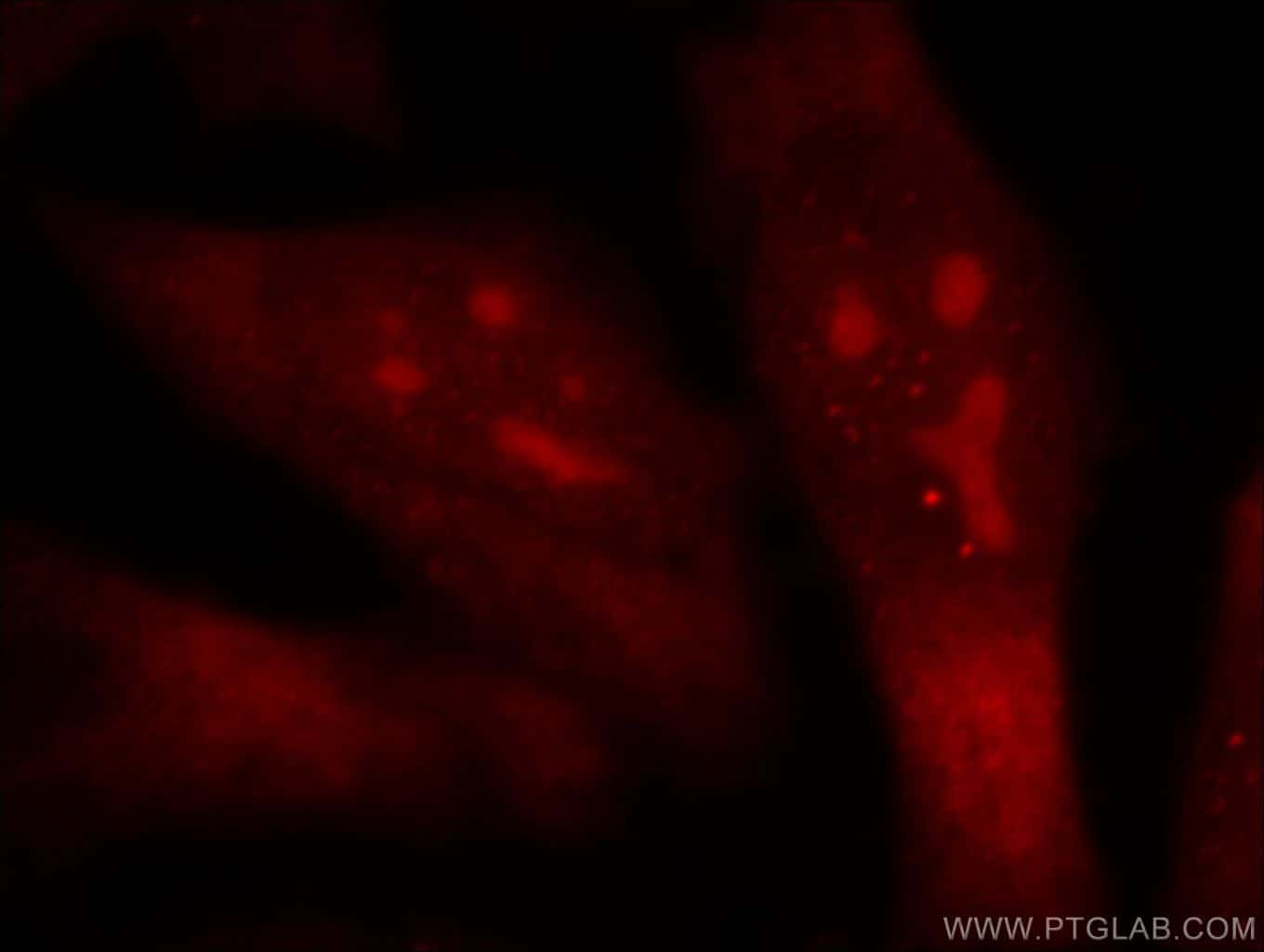 TOP2B Antibody in Immunofluorescence (IF)