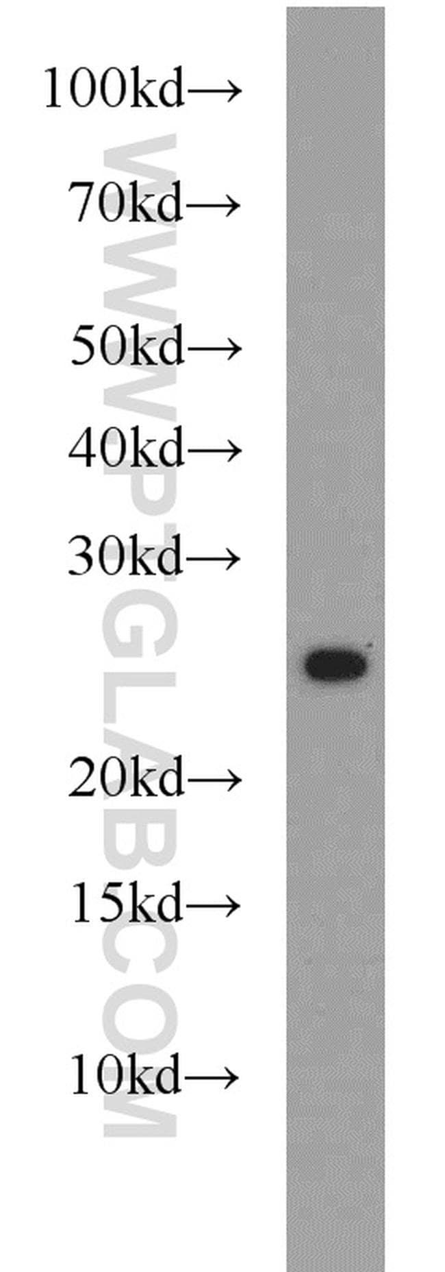 CBLN2 Antibody in Western Blot (WB)