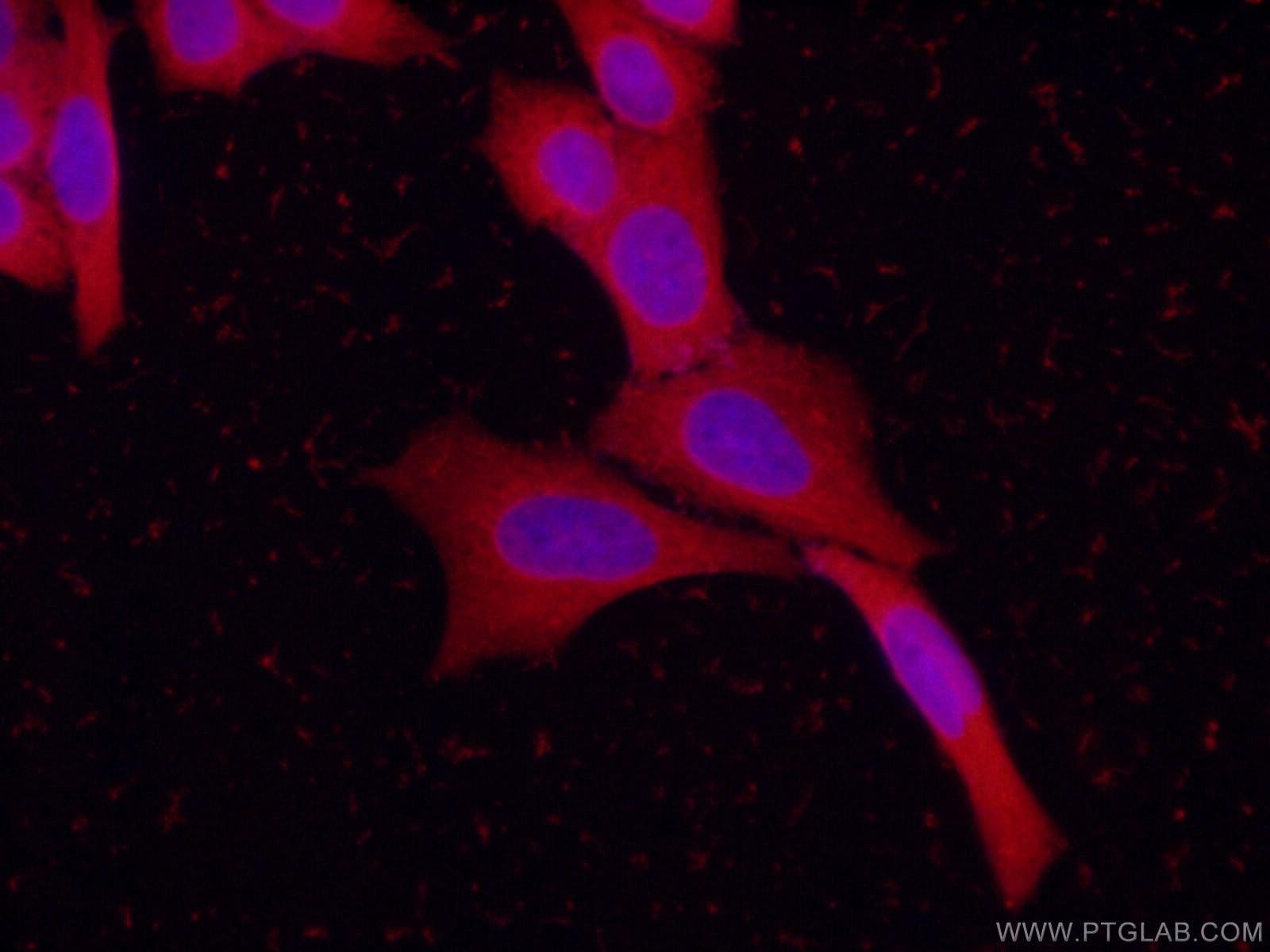 STXBP1 Antibody in Immunofluorescence (IF)