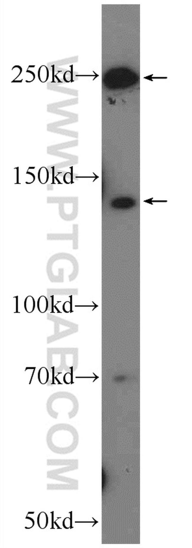 APOB Antibody in Western Blot (WB)