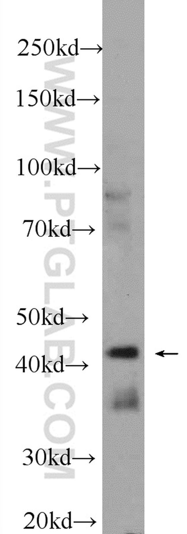 IIP45 Antibody in Western Blot (WB)